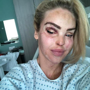 Bruised Katie Piper endures surgery on her healthy eye